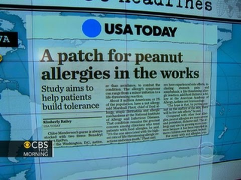 Headlines at 8:30: New patch could treat peanut allergies