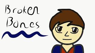 Broken Wrist Story | Charles Animates