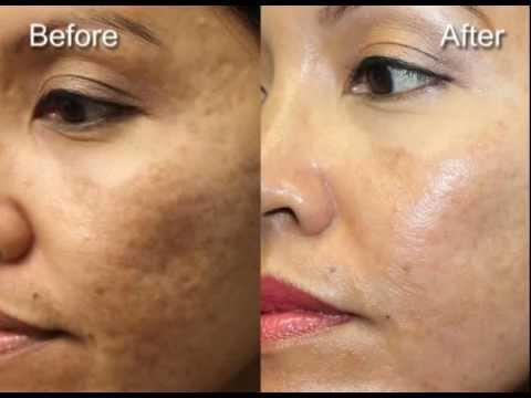 July 2013 laser skin resurfacing - Hispanic female
