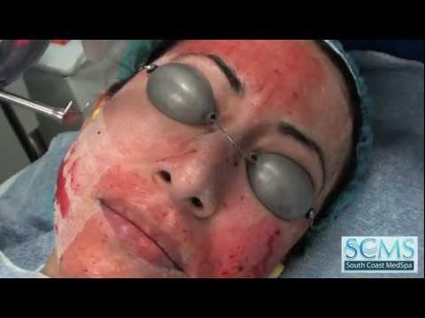 Laser Acne Scar Resurfacing Hispanic Patient (En Español)