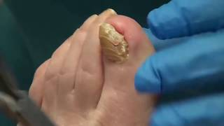 World's Thickest Nails!  All Star Doctors with Dr. Nail Nipper (Toenail Tuesday)