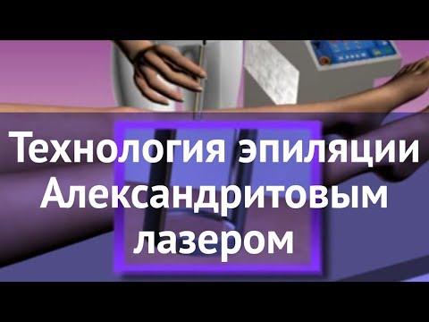 Технология эпиляции Александритовым лазером