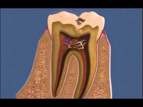 Удалить передний зуб во сне