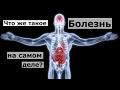 Бесслизистая диета Арнольда Эрета mp3