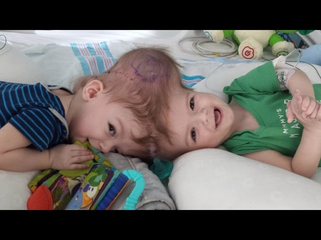 13-Month-Old Twin Boys Born Conjoined at Head Are Successfully Separated