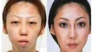 Man Sues Wife, Over Secret Plastic Surgery  and Wins,  4/11/13  (china)