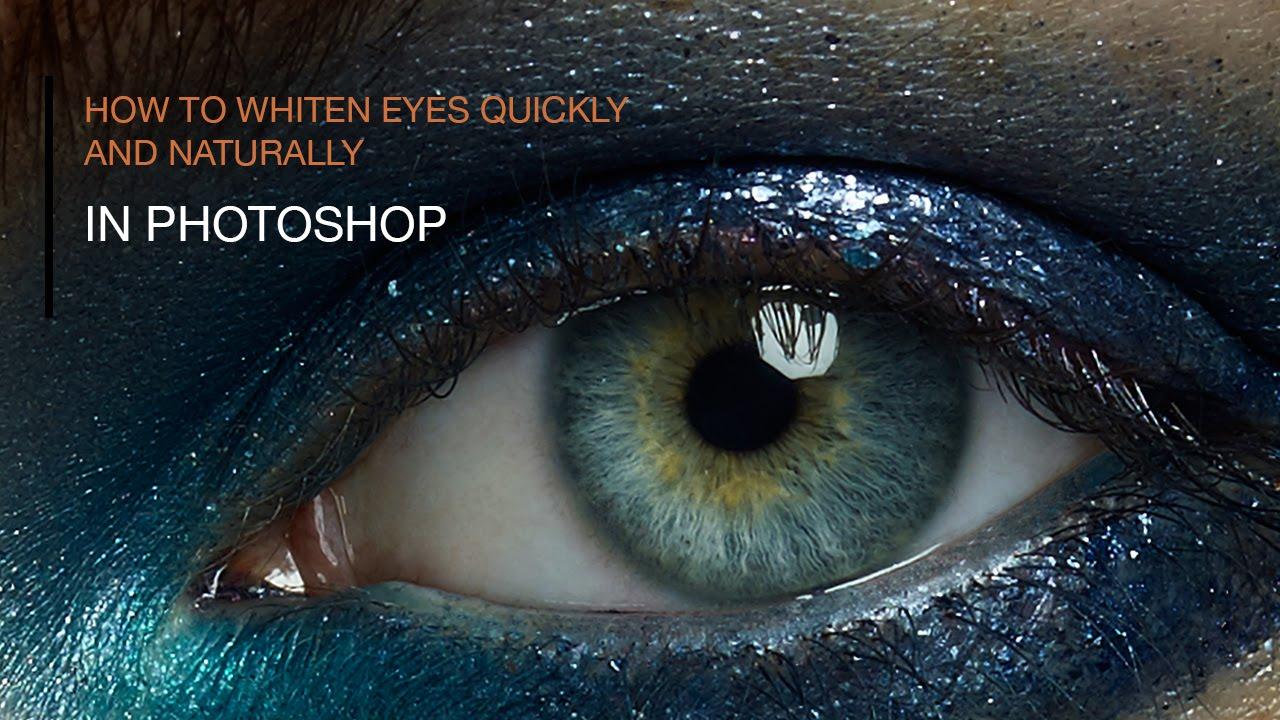 How To Whiten Sclera Of Eyes Naturally