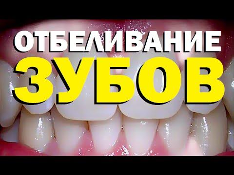 Галилео. Отбеливание зубов
