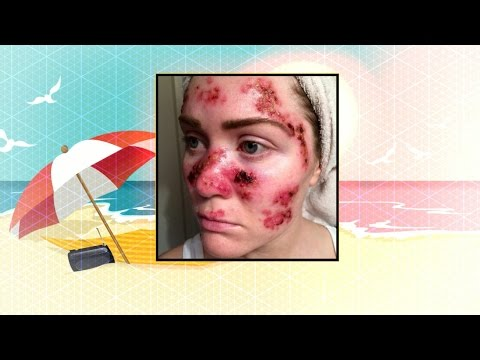 Skin Cancer Selfie Goes Viral