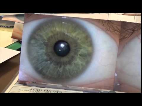 Eye Review Part 1 - Dr. Morse reviews submitted eyes.