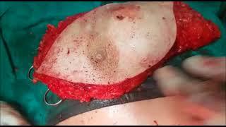 Mohan Rau Hospital Surgeries - M R M for Cancer  Breast.