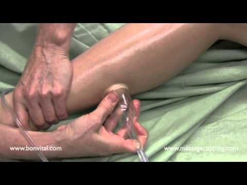 How massage cupping is used on scar tissue