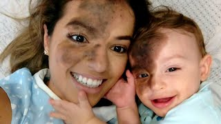Mom Uses Makeup to Match Son