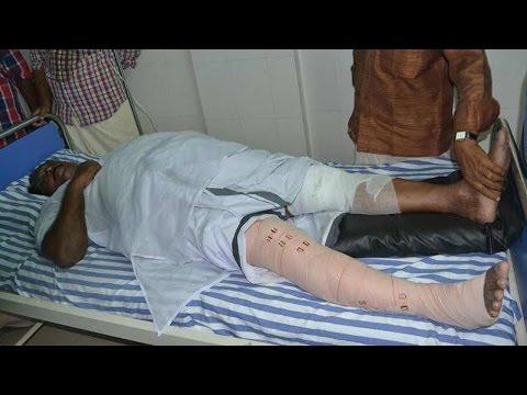 Kerala Minister injured after TV debate turns violent