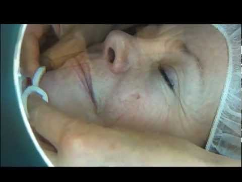 DioLite Laser for various skin imperfections
