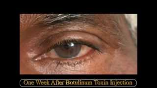 Botulinum Toxin Injection for Hemi-Facial Spasm by Dr Vidushi Sharma, SuVi Eye Hospital, Kota India