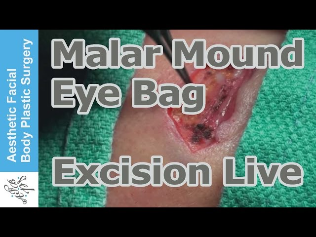 Malar Crest / Lower Eyelid Bag Direct Excision by Dr Young