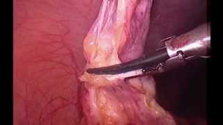 Apendicite aguda (apendicectomia por video ) / acute appendicitis