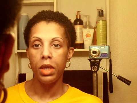 Alpha Beta Chemical Peel (Combination 50% Glycolic & 60% Lactic Acid) & Tattooed Eyebrows- Follow-up