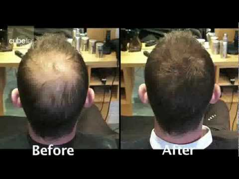 Mens Hair Loss product solution from Toppik