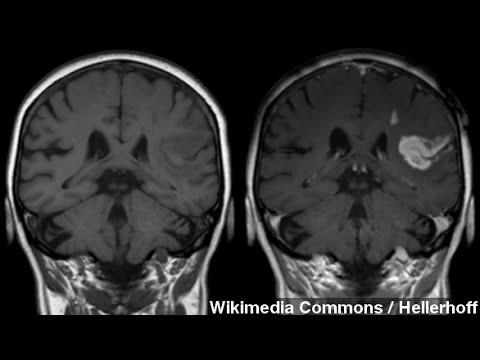 Only Half Of U.S. Women Can Spot Stroke Symptoms