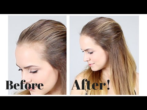 How To Hide Recession In Your Hair Line Youtube