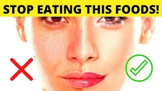 6 Foods That Destroy Your Hormones And Skin