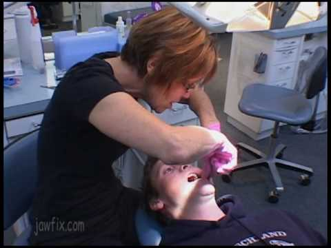 Ryan's Jaw Surgery - Video-4  Orthodontic Prep