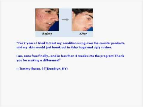 Acne No More Reviews - Check Out These Clients Acne No More Reviews!
