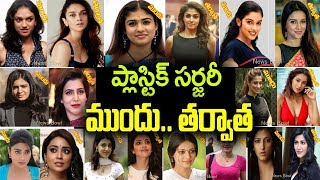plastic surgery tollywood actress| telugu heroines plastic surgery|tollywood actress plastic surgery