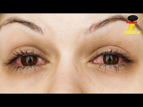 Was ist eine Augengrippe?