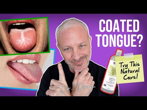 Miley Cyrus coated tongue may indicate bulimia, excess alcohol, warn ...
