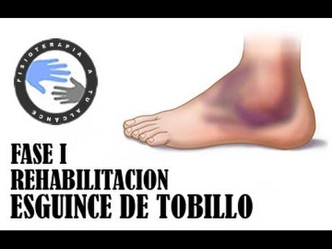 Esguince de tobillo, rehabilitacion fase 1 / Fisioterapia a tu alcance