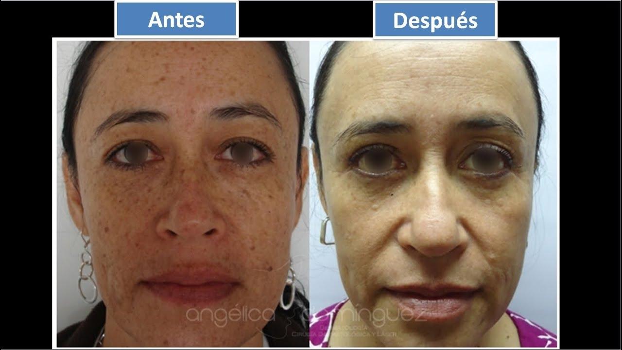 Tratamientos especializados para manchas en la cara - Como quitar las humedades de la pared ...