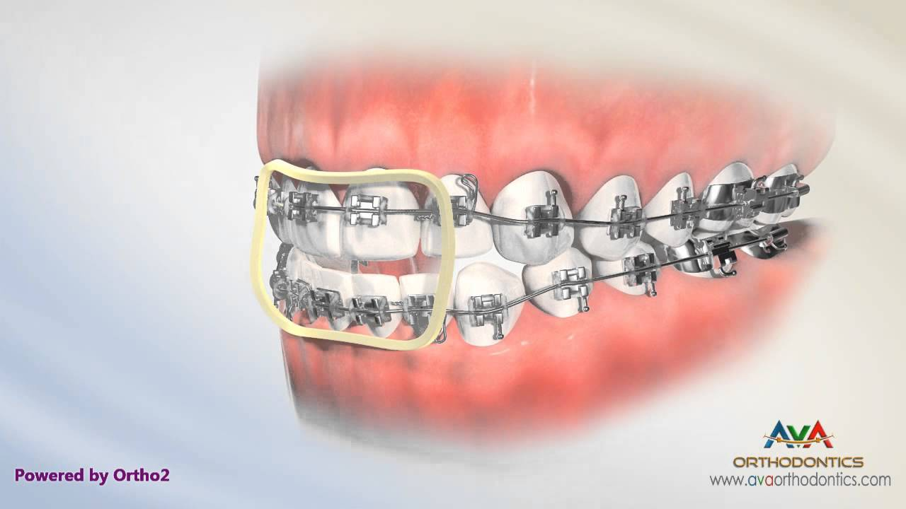 Correcting Openbite By Rubber Bands Orthodontic