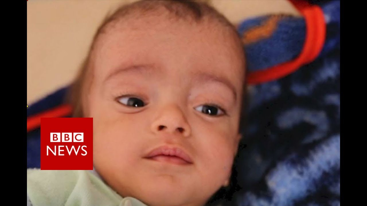 Yemen hospital battles world's worst cholera outbreak - BBC News