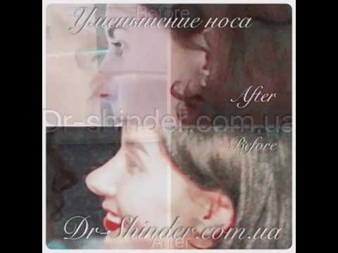 Пластика носа без пластической операции! Dr.Shinder