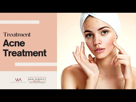 Amazing Acne Before and After Results with Spectra Laser