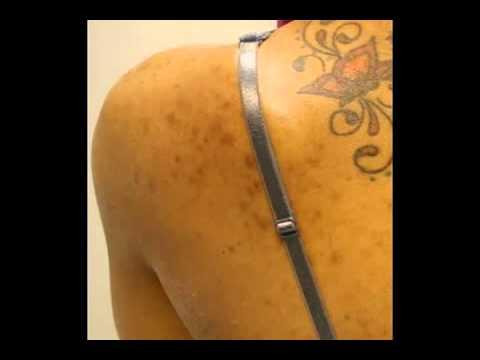 Back Acne Case Study