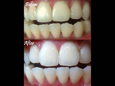 REMBRANDT TEETH WHITENING GEL - DEMONSTRATION & REVIEW