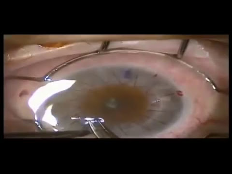 Trapianto di cornea per cheratocono: la cheratoplastica - dott Marco Abbondanza