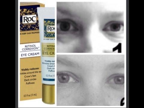 The ROC: Eye Cream Review (6 week study)