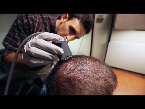 A brain implant to help quadriplegics move