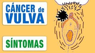 Síntomas del Cancer Vulvar - Cómo Descubrirlo