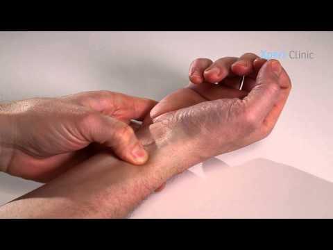 onderhuids littekenweefsel na operatie