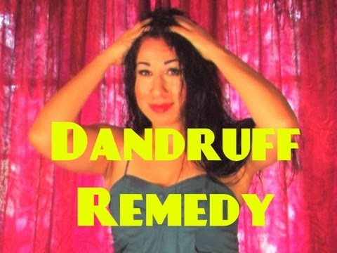 How to get rid of Dandruff INSTANTLY! Fast Naturally Forever overnight Treatment at Home Remedies