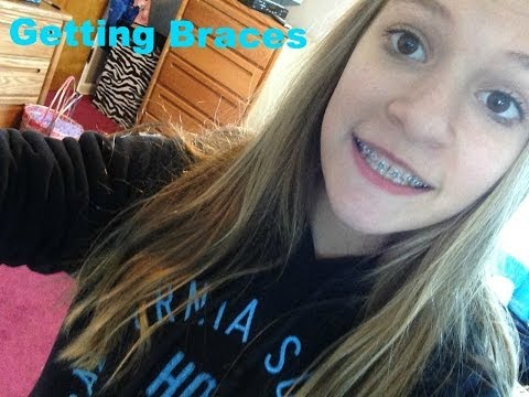 Vlog! - Getting Braces