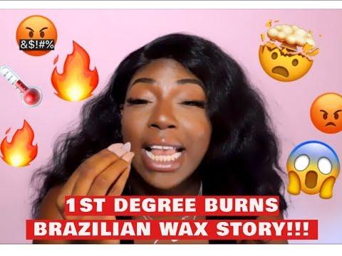 STORYTIME: 1ST DEGREE BURNS ON MY VAGINA   || BRAZILIAN WAX HORROR STORY TIME || EbonyBrongskin thumbnail