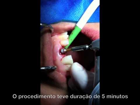 Cirurgia Real de Implante Dentário