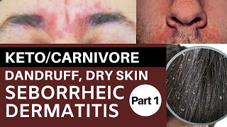 Keto/Carnivore Dandruff, Dry Skin & Seborrheic Dermatitis Part 1: Riboflavin Deficiency